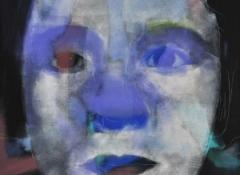 rothmund-thomson-syndrome-100x80-cm